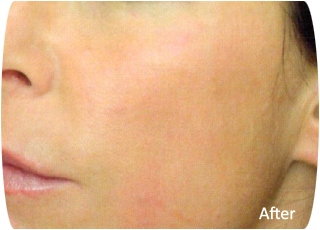 Cellular Face Lift - After photo