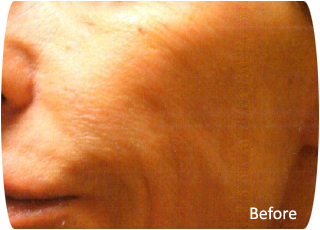 Cellular Face Lift - Before photo