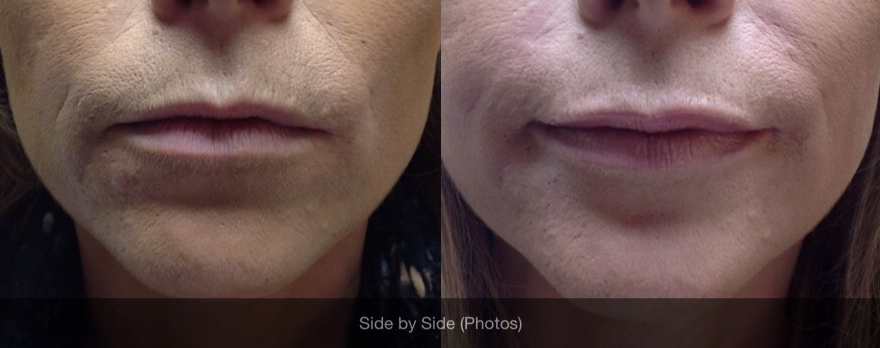 Before And After Photos Of Filler Treatment For Nasolabial Folds